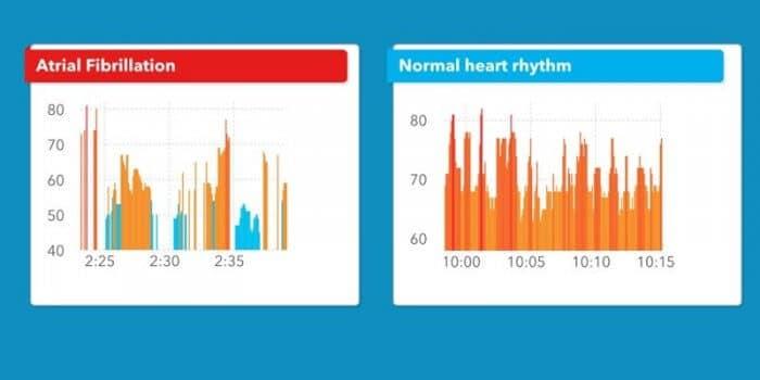 Cardiogram iOS alkalmazás