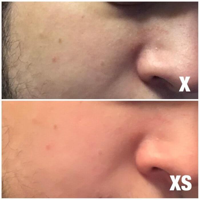 iPhone XS, XS Max bőrhibák javítása