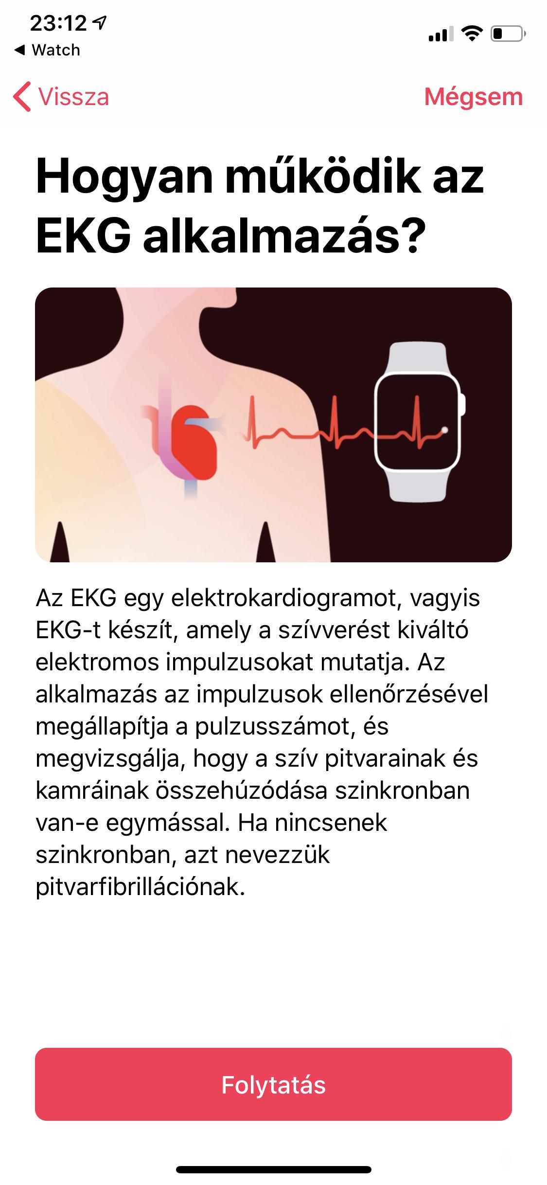 fb9a2c4a9682 Bővebben az EKG funkcióról: Gyakori kérdések: EKG az Apple Watch Series  4-ben